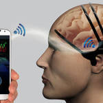Инженеры из Samsung создали носимый гаджет для раннего обнаружения инсультов
